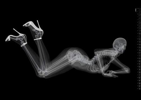 A woman posing seductively is shown in an x-ray - a great example of a viral advertisement.
